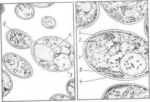 Электронная микрофотография дрожжевой клетки